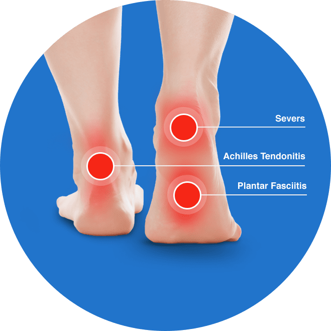 heel spurs, severs, achilles tendonitis and plantar fasciitis