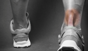 Signs of Achilles Tendonitis