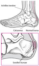 Upper Heel Pain