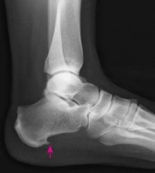 what does a heel spur feel like